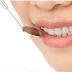 Get Perfect Teeth Whitening Services At Bhatia Dental Care