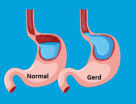 Cara Mengobati Gerd Dengan Kunyit