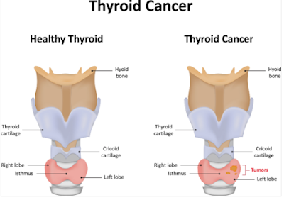 thyroid disorders treatment mumbai