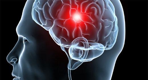 Resultado de imagen de accidente cerebrovascular