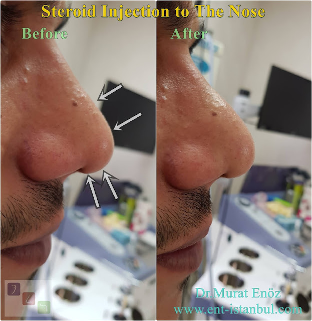 Steroid injection after rhinoplasty