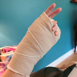 Peace sign from a hand in a cast June 3, 2020