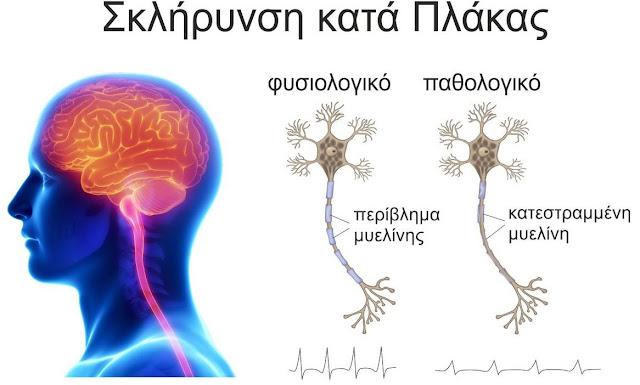 Η σκλήρυνση κατά πλάκας (MS) είναι μια πολύπλοκη ασθένεια