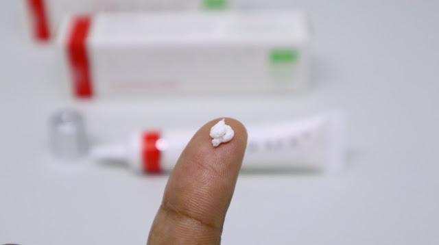 cara menghilangkan bekas luka pada bayi
