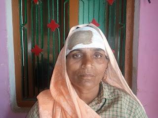 कलयुगी बेटे ने मां को बुरी तरह से पीटा, हालत नाजुक , पीड़ित माँ ने पुलिस लगाई न्याय की गुहार