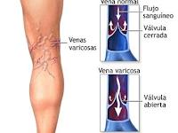 pengobatan lintah dan penyakit vena