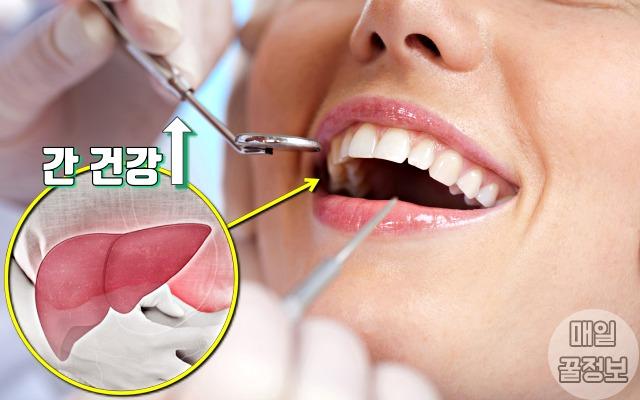 간을 좋게 하는 방법, 치주염, 간경화, 건강, 팁줌 매일꿀정보