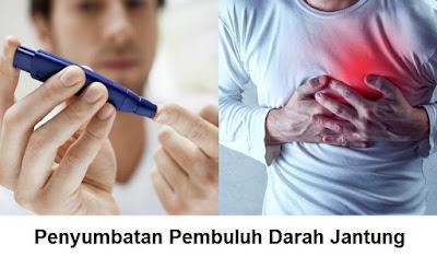 Arteri Koroner : Sindrom Koroner Akut, Infark Miokard Akut Dan Penyempitan Pembuluh Darah Jantung