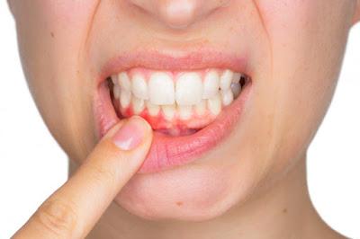 Foto boca mostrando dientes con periodontitis