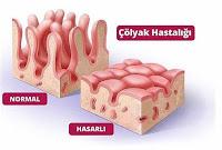 çölyak hastalığında gliadin molekülü inflamasyon başlatır