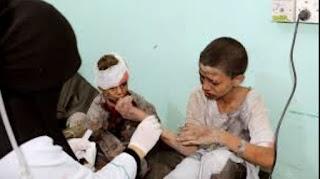 Tujuh Anak dan Dua Wanita Tewas Akibat Serangan Udara di Yaman