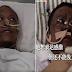 Inilah Kisah 2 Dokter Corona di Wuhan yang Mengalami Perubahan Warna Kulit