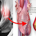 Do Not Ignore: This Can Save Your Life From Possible Heart Attack!