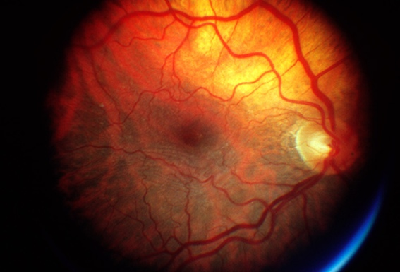 Zinc May Help Prevent Age-Related Macular Degeneration