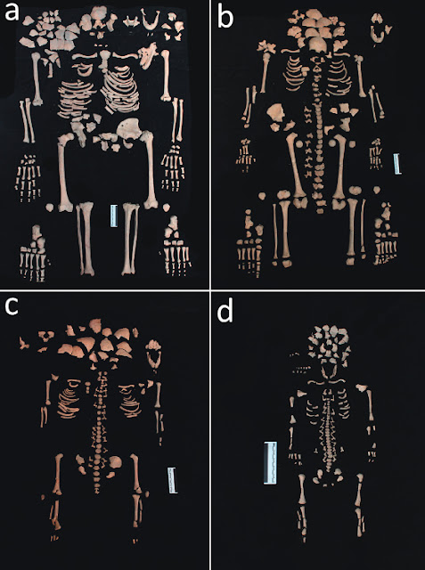Rare 'coffin birth' found at black death burial site in northern Italy