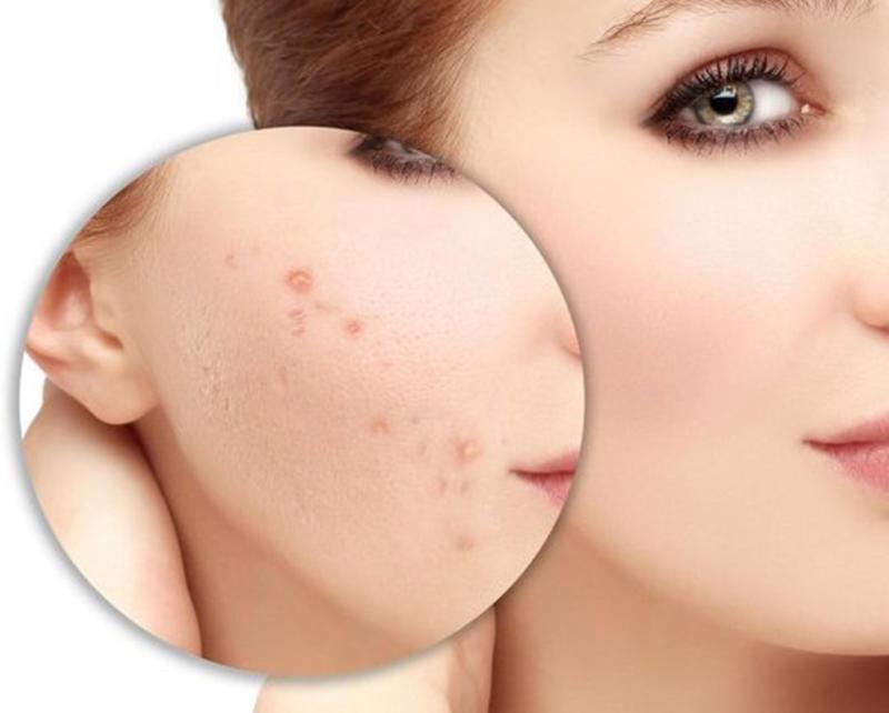 Nên làm gì để điều trị sẹo mụn được hiệu quả? Luu-y-khi-dieu-tri-seo-mun-1