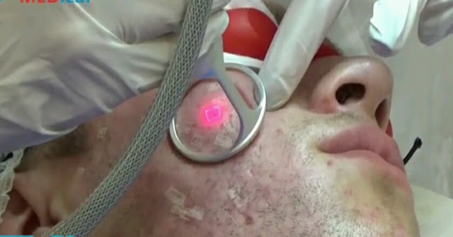Pelepasan kulit dengan laser