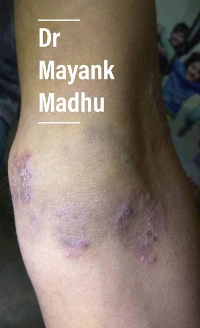 www.drmayankmadu.com