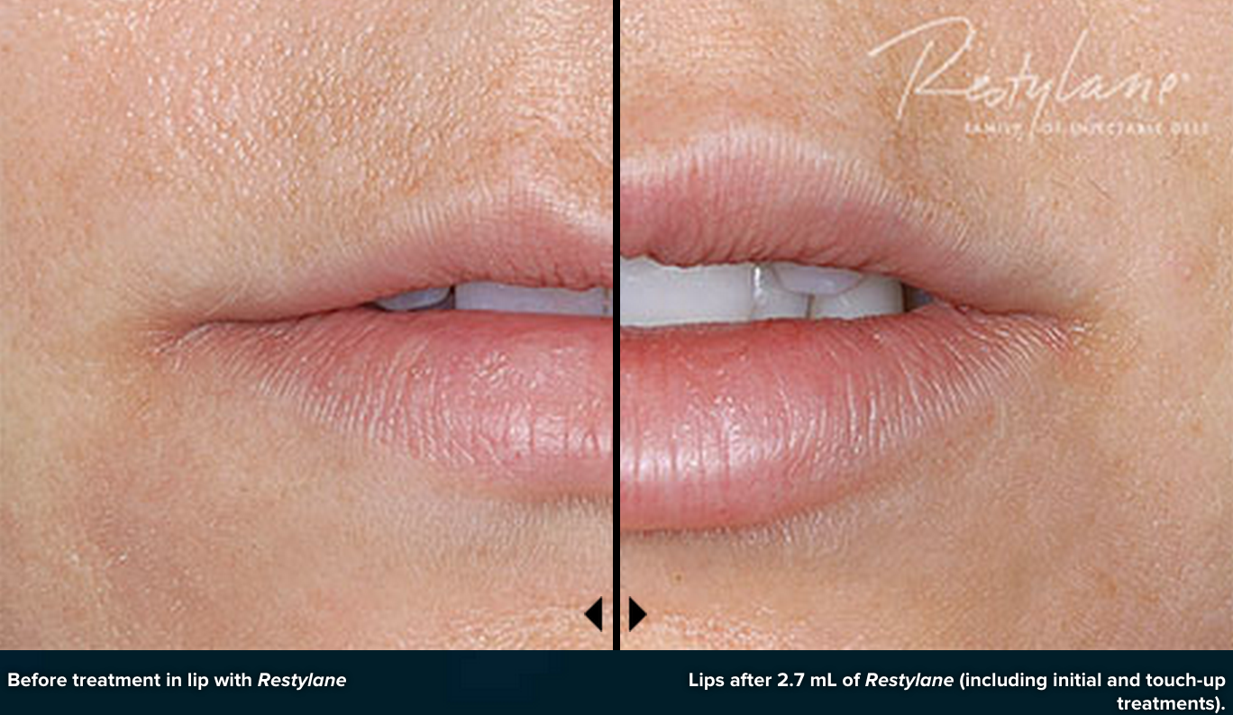 Plump Up Your Pout with the NEW Restylane Silk~ at Germain