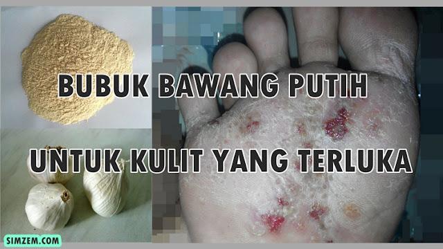 bawang putih untuk luka