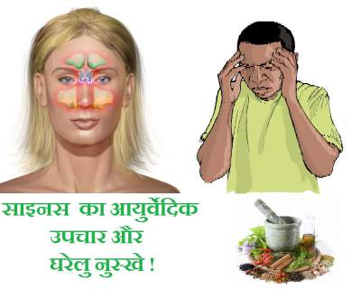 ayurveda-treatment-home-remedy-sinus-hindi-upchar-nuskhe