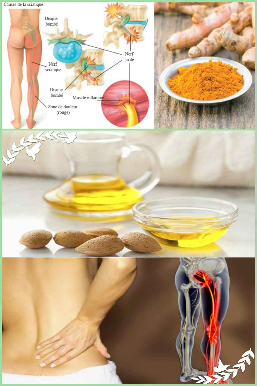 Remèdes naturels à la maison pour le soulagement de la douleur sciatique