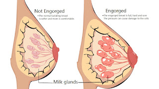 Perubahan payudara