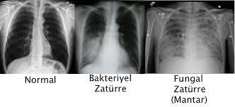 Zatürre akciğerde leke film