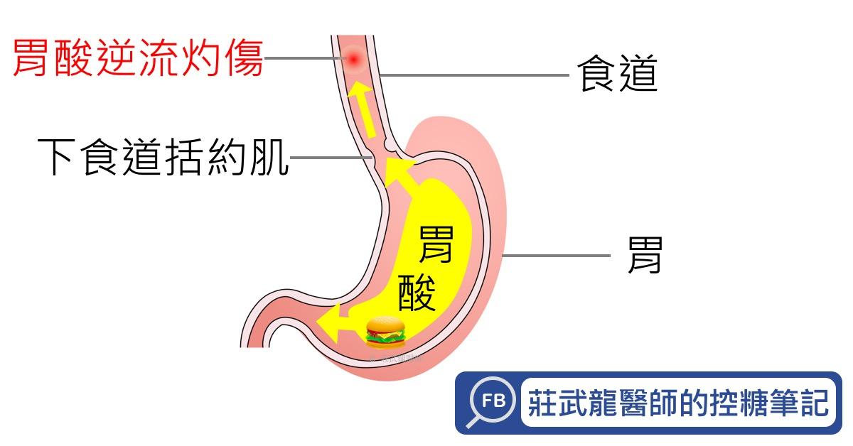 胃食道逆流的病因
