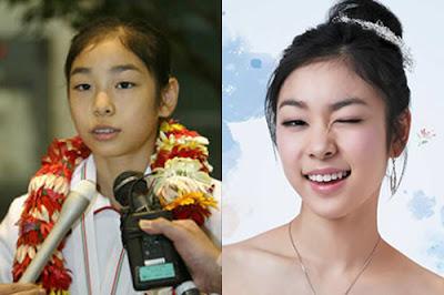 Nữ hoàng sân băng Kim Yuna - minh chứng cho niềng răng đẹp cỡ nào