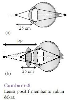 Lensa Positif membantu rabun dekat