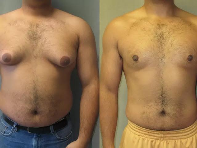 gynecomastia surgery in India