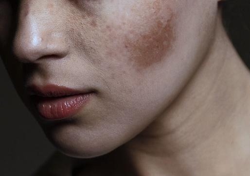 Cara Menghilangkan Flek Hitam di Wajah secara alami