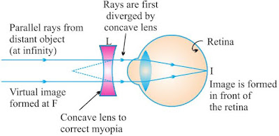 Notes of ch 11 human eye and colourful world class 10th science the concave lens placed in front of the eye forms a virtual image of distant object at far point f of the myopic eye ccuart Choice Image
