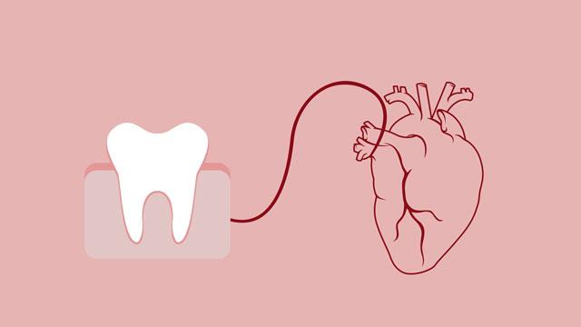 علاج الأسنان لمرضى أدوية مسيل الدم الوارفارين والهيبارين