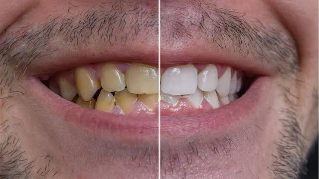 Mengelak perubahan warna gigi