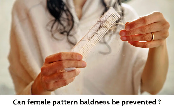 Can female pattern baldness be prevented?