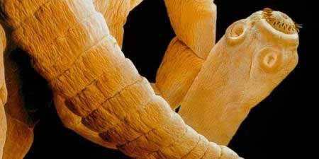 jellegzetes parazita férgek a legjobb vastagbél méregtelenítő készlet