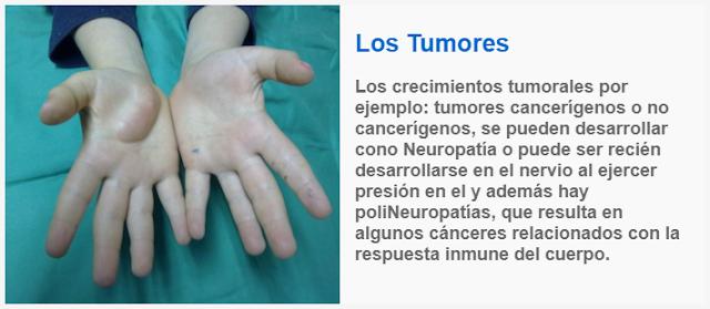 Los tumores y la poliNeuropatía