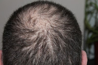 hair loss affecting head