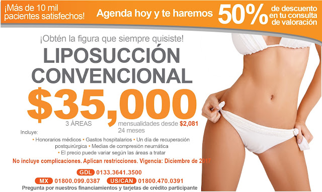 Liposuccion - Precio de Paquete de Lipoescultura en Guadalajara Mexico