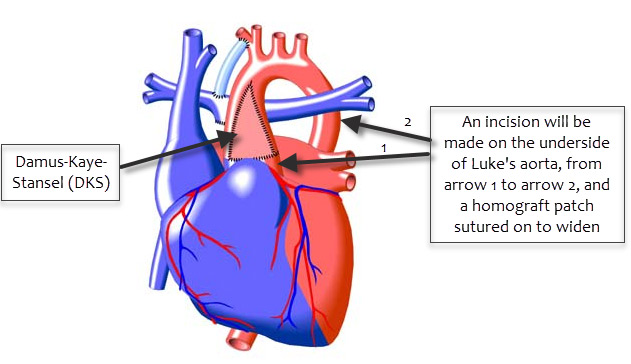 Smith family journey this is not an accurate graphic of lukes heart but its a good visual of the dks procedure that was done as part of his second open heart surgery ccuart Images