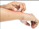 Allergy Tips that may Grant You Some Relief