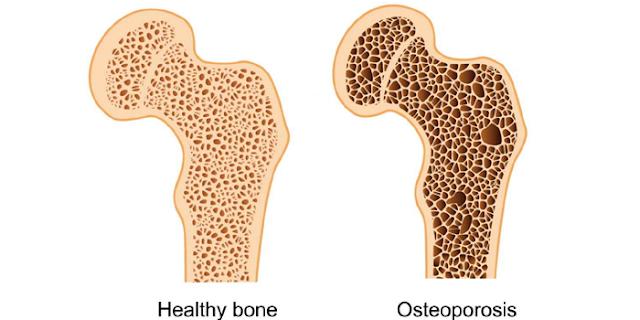 OSTEOPOROSIS: लक्षण और इलाज | हड्डियों में दर्द हो तो यह बीमारी भी हो सकती है