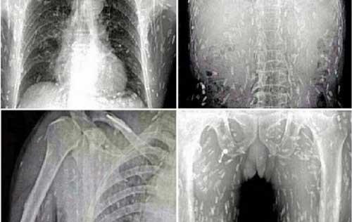 cacing pita di tubuh 9 Hewan Parasit Mengerikan yang Hidup Bersarang Di Tubuh Manusia