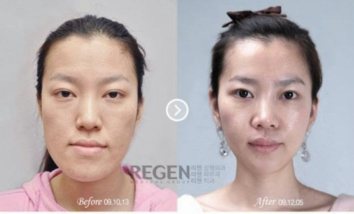 Korean Plastic Surgery Part 2 Damn Cool Pictures