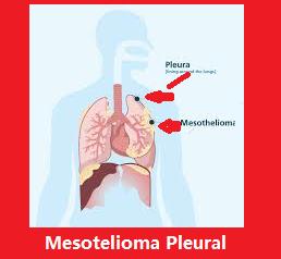 Cancer de mesotelioma definicion