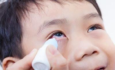 Atropin Eye Drops may Slow Myopia Progresivity in Children