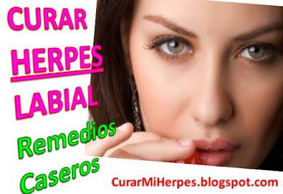 Como-Quitar-Un-Fuego-Labial-Remedios-Caseros-Como-Curar-Herpes-Labios-Bucal