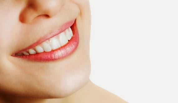 Cara Memutihkan Gigi dengan Cepat